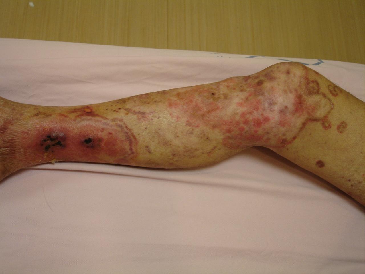 图二. 下肢霉菌感染-彰基 肾脏科暨慢性肾脏病卫教中心 血管医学防治